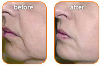radiofrequency skin tightening before and after